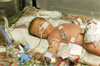 premature baby boy - photo/picture definition - premature baby boy word and phrase image